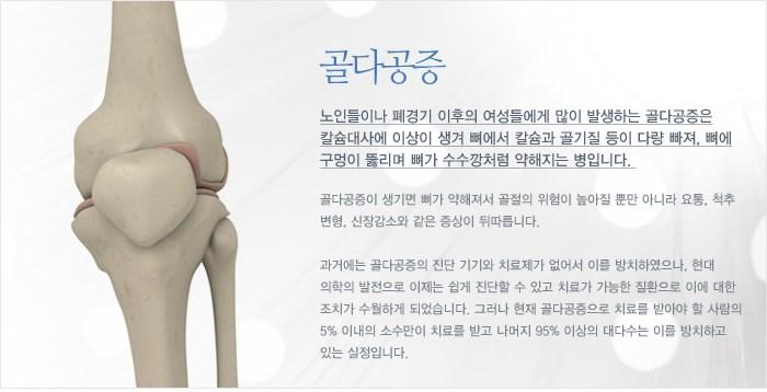 골다공증: 노인들이나 폐경기 이후의 여성들에게 많이 발생하는 골다공증은 칼슘대사에 이상이 생겨 뼈에서 칼슘과 골기질 등이 다량 빠져, 뼈에 구멍이 뚫리며 뼈가 수수깡처럼 약해지는 병입니다. 골다공증이 생기면 뼈가 약해져서 골절의 위험이 높아질 뿐만 아니라 요통, 척추 변형, 신장감소와 같은 증상이 뒤따릅니다.  과거에는 골다공증의 진단 기기와 치료제가 없어서 이를 방치하였으나, 현대 의학의 발전으로 이제는 쉽게 진단할 수 있고 치료가 가능한 질환으로 이에 대한 조치가 수월하게 되었습니다. 그러나 현재 골다공증으로 치료를 받아야 할 사람의 5% 이내의 소수만이 치료를 받고 나머지 95% 이상의 대다수는 이를 방치하고 있는 실정입니다.