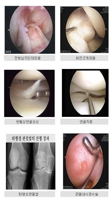 전방십자인대파열             회전근개파열 반월상연골손상              연골치료    퇴행성관절염              관절내시경수술