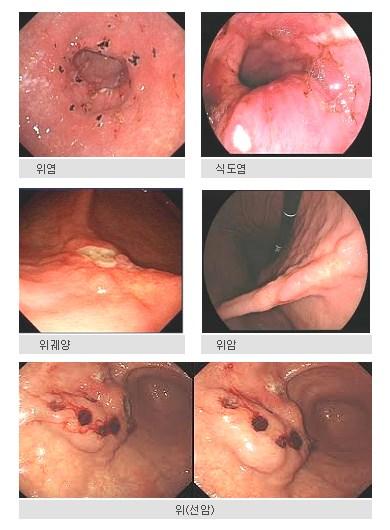위염                    식도염      위궤양                    위암                     위(선암)