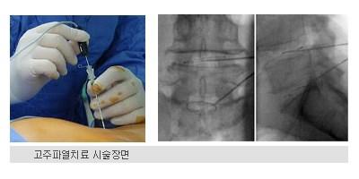 고주파열치료 시술장면